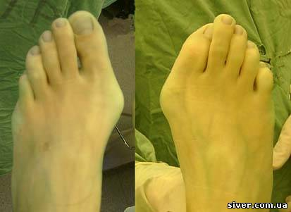 гулі на ногах біля великого пальця